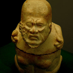 An Olmec figurine depicting a diseased man
